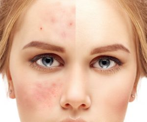 Traditional medicine solutions for having fresh skin and shiny hair